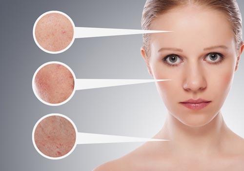 Cách ngăn đề phòng sạm và nám da